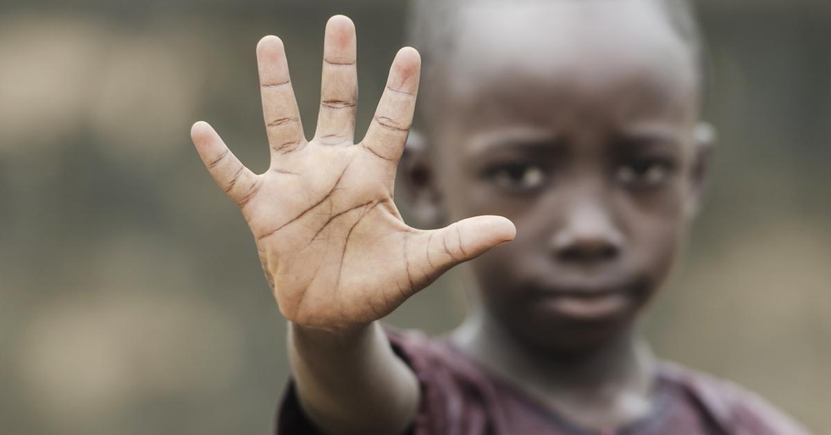 pobreza-y-hambruna-en-sudan-del-sur